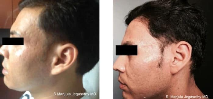 Fraxel® for acne scars
