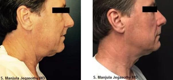 Kybella® for nonsurgical necklift