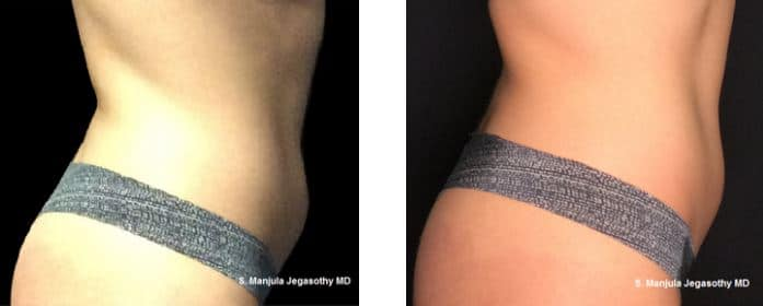 Kybella® for reducing lower abdomen fat