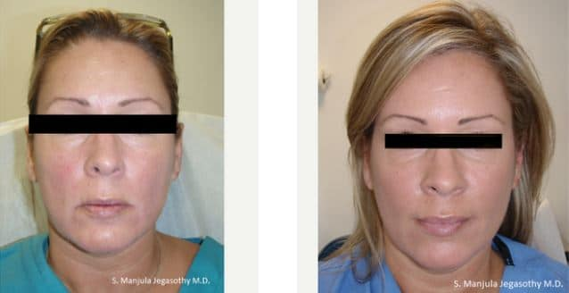 Dysport® and Sculptra® for sagging cheeks and jawline
