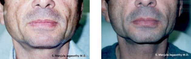 Sculptra® for the cheeks on a 55 year old man