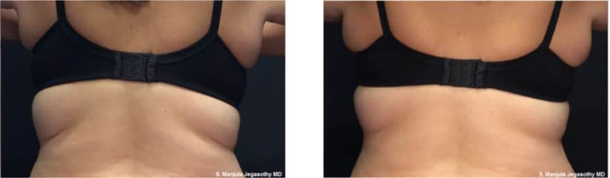 VanquishME™ for reducing back fat