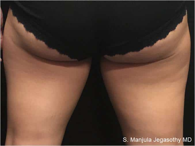Kybella Thighs - Pre 8 Months