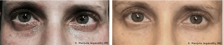 Fraxel® and Viora® Cosmetic Laser Combo Treatment for Eyelids